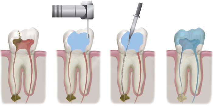 Root Canal Treatment in St. George, UT | Hammons Dental