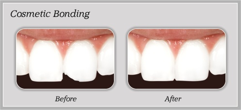 Cosmetic Bonding | Hammons Dental