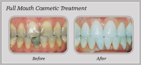 Full Mouth Cosmetic Treatment | Hammons Dental