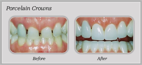 Porcelain Crowns | Hammons Dental