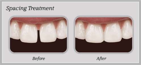 Spacing Treatment | Hammons Dental