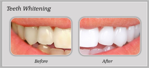 Teeth Whithening | Hammons Dental