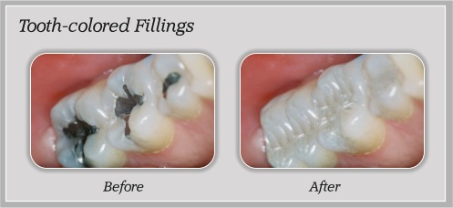 Tooth Colored Fillings | Hammons Dental