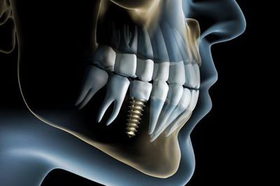 Dental Implants in Santa Clara, UT | Hammons Dental