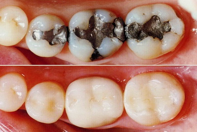 Tooth-Colored Fillings in St. George, UT | Hammons Dental